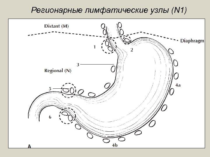 Регионарные лимфатические узлы (N 1)