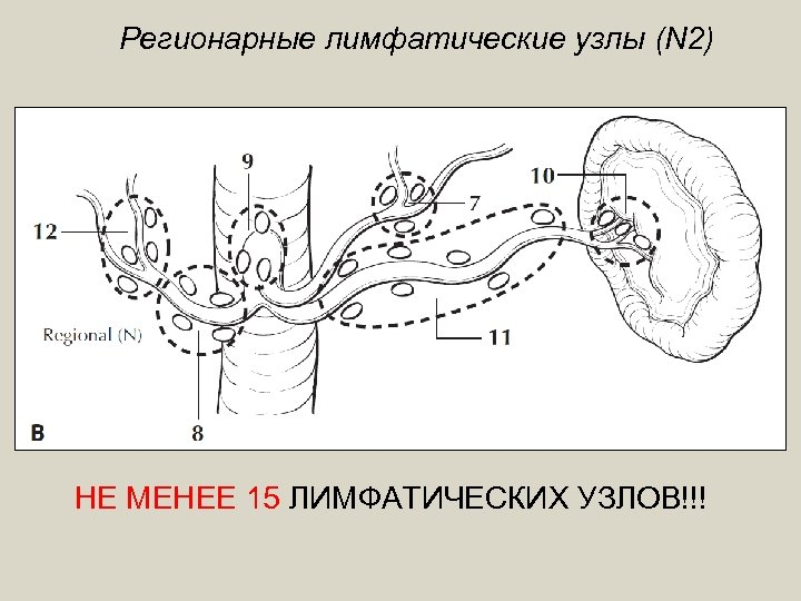 Регионарные лимфатические узлы (N 2) НЕ МЕНЕЕ 15 ЛИМФАТИЧЕСКИХ УЗЛОВ!!!