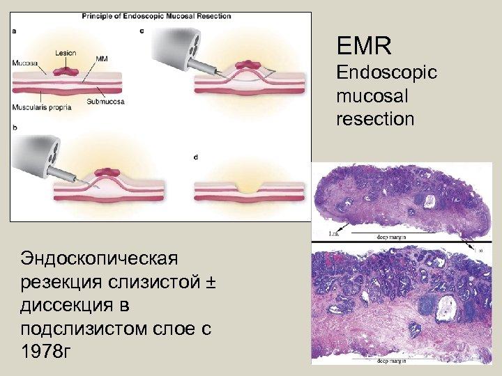 EMR Endoscopic mucosal resection Эндоскопическая резекция слизистой ± диссекция в подслизистом слое с 1978