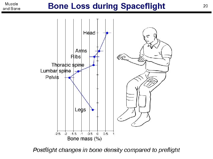 Muscle and Bone Loss during Spaceflight Postflight changes in bone density compared to preflight