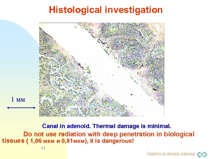 Histological investigation 1 мм Canal in adenoid. Thermal damage is minimal. Do not use
