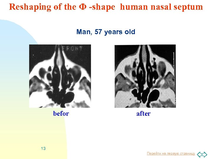 Reshaping of the Φ -shape human nasal septum Man, 57 years old befor after