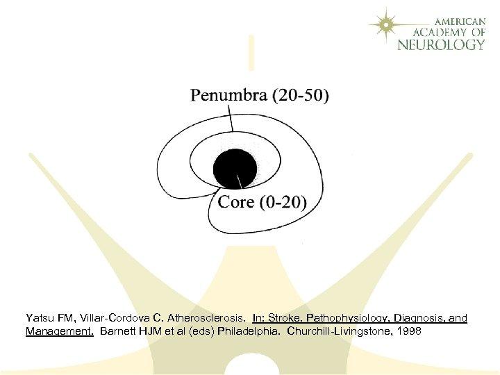 Yatsu FM, Villar-Cordova C. Atherosclerosis. In: Stroke. Pathophysiology, Diagnosis, and Management. Barnett HJM et