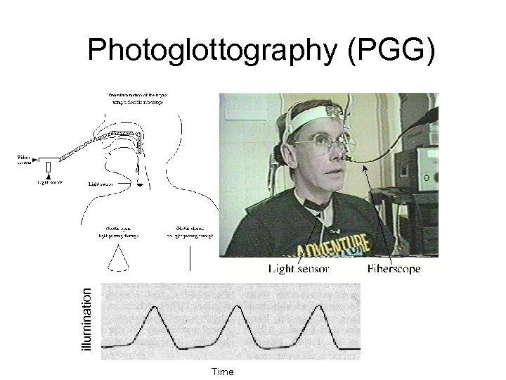illumination Photoglottography (PGG) Time