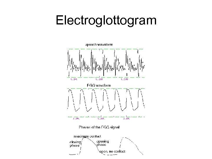 Electroglottogram