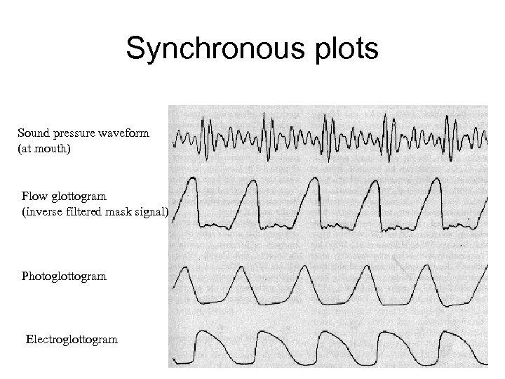 Synchronous plots Sound pressure waveform (at mouth) Flow glottogram (inverse filtered mask signal) Photoglottogram