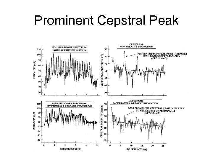 Prominent Cepstral Peak