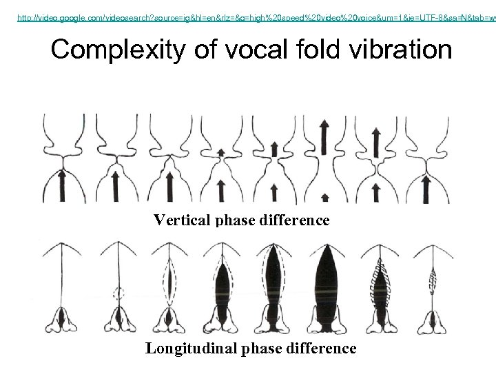 http: //video. google. com/videosearch? source=ig&hl=en&rlz=&q=high%20 speed%20 video%20 voice&um=1&ie=UTF-8&sa=N&tab=wv Complexity of vocal fold vibration Vertical