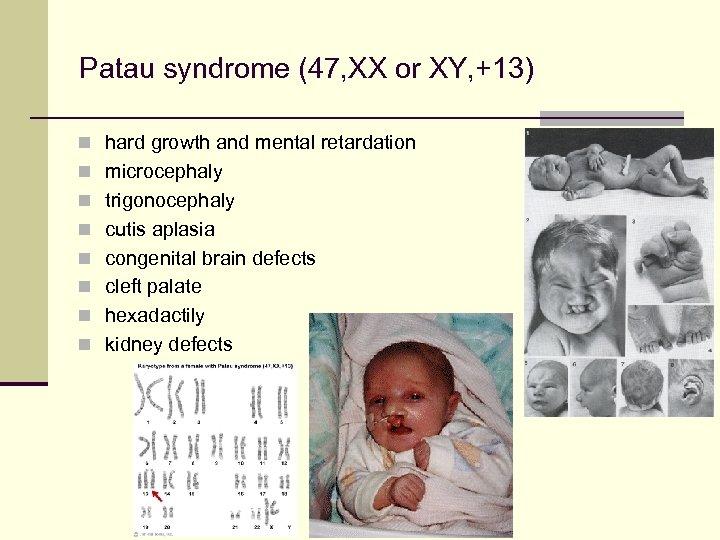 Patau syndrome (47, XX or XY, +13) n hard growth and mental retardation n