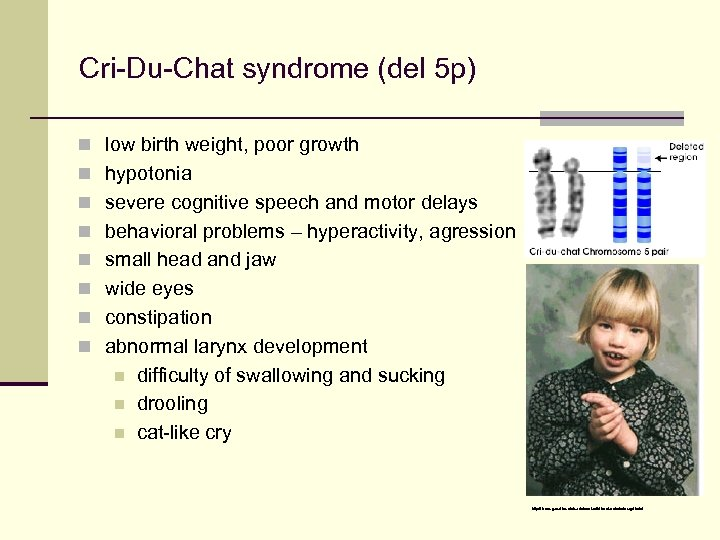 Cri-Du-Chat syndrome (del 5 p) n low birth weight, poor growth n hypotonia n