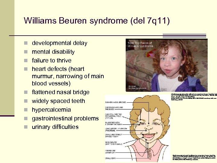 Williams Beuren syndrome (del 7 q 11) n developmental delay n mental disability n
