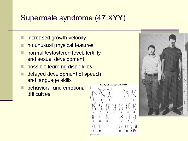 Supermale syndrome (47, XYY) n increased growth velocity n no unusual physical features n