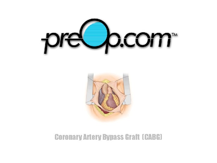 Coronary Artery Bypass Graft (CABG)