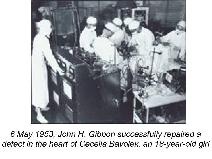 6 May 1953, John H. Gibbon successfully repaired a defect in the heart of
