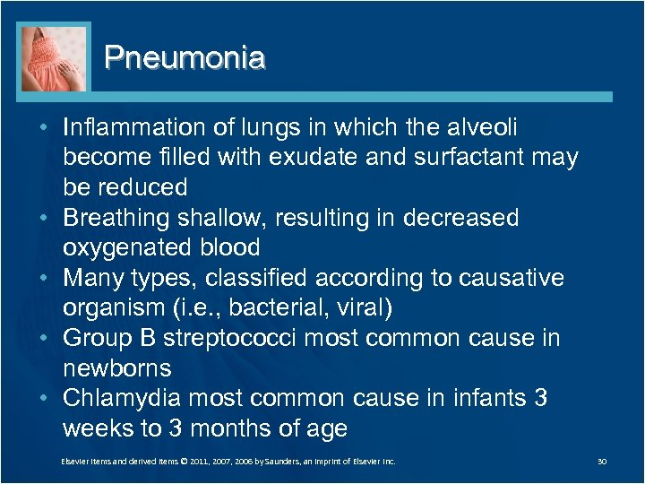 Pneumonia • Inflammation of lungs in which the alveoli become filled with exudate and