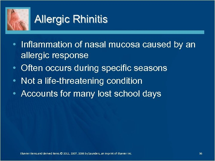 Allergic Rhinitis • Inflammation of nasal mucosa caused by an allergic response • Often