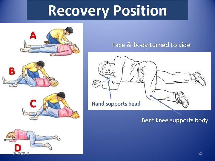 Recovery Position Face & body turned to side Hand supports head Bent knee supports