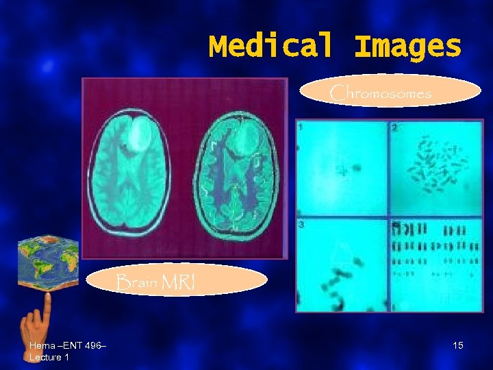 Medical Images Chromosomes Brain MRI Hema –ENT 496– Lecture 1 15