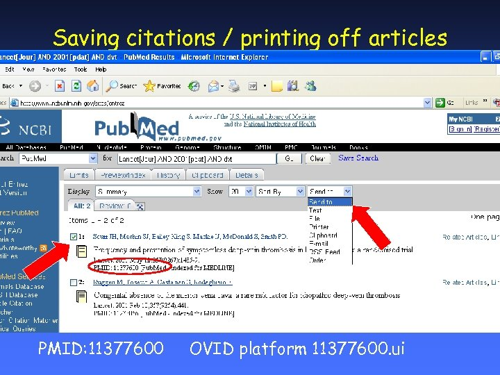 Saving citations / printing off articles PMID: 11377600 OVID platform 11377600. ui