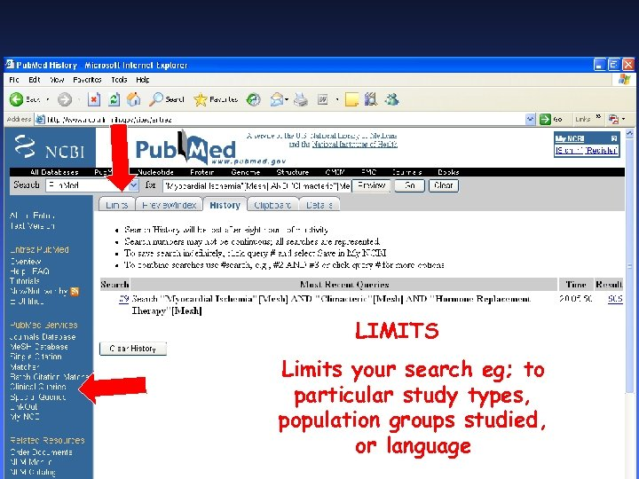 LIMITS Limits your search eg; to particular study types, population groups studied, or language