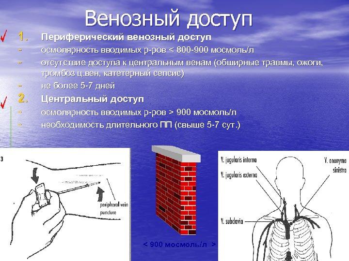 Венозный доступ 1. Периферический венозный доступ - осмолярность вводимых р-ров < 800 -900 мосмоль/л