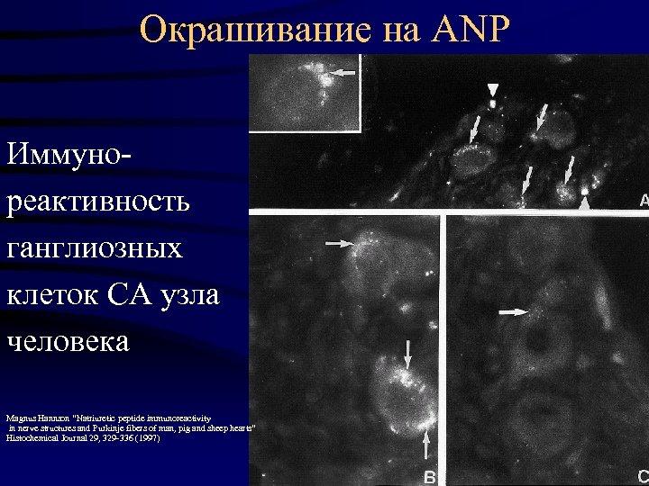"""Окрашивание на ANP Иммунореактивность ганглиозных клеток СА узла человека Magnus Hannson """"Natriuretic peptide immunoreactivity"""