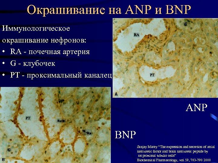 Окрашивание на ANP и BNP Иммунологическое окрашивание нефронов: • RA - почечная артерия •