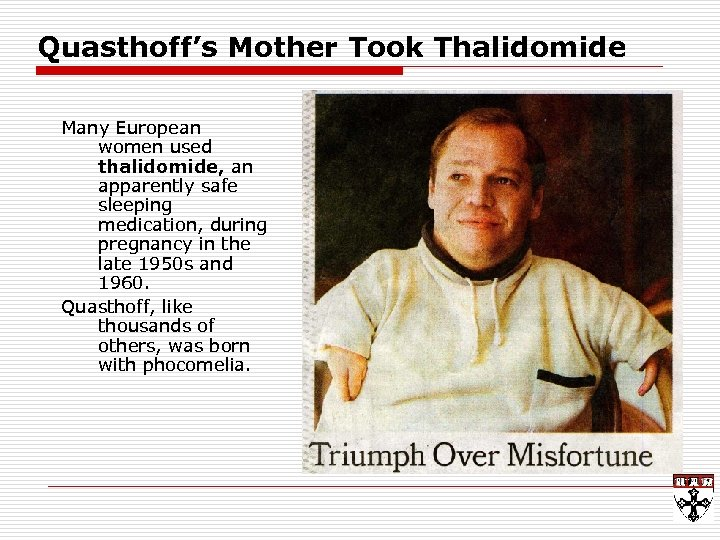 Quasthoff's Mother Took Thalidomide Many European women used thalidomide, an apparently safe sleeping medication,