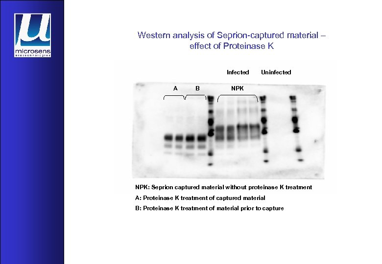Western analysis of Seprion-captured material – effect of Proteinase K Infected A B Uninfected