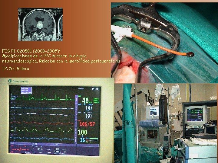 FIS PI 020581 (2003 -2005): Modificaciones de la PPC durante la cirugía neuroendoscópica. Relación