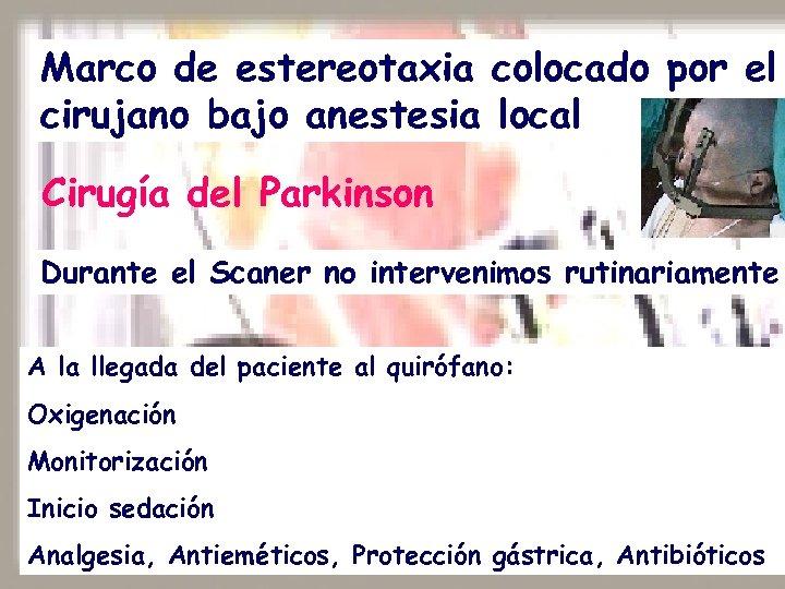 Marco de estereotaxia colocado por el cirujano bajo anestesia local Cirugía del Parkinson Durante