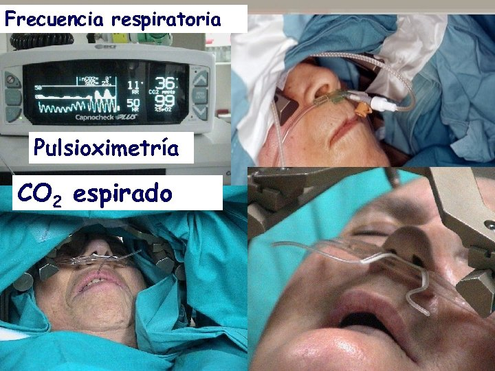 Frecuencia respiratoria Pulsioximetría CO 2 espirado