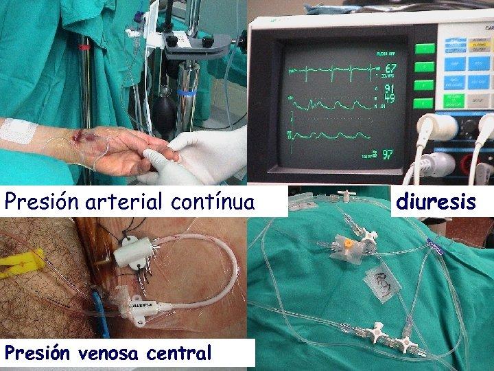 Presión arterial contínua Presión venosa central diuresis