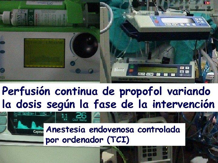 Perfusión continua de propofol variando la dosis según la fase de la intervención Anestesia