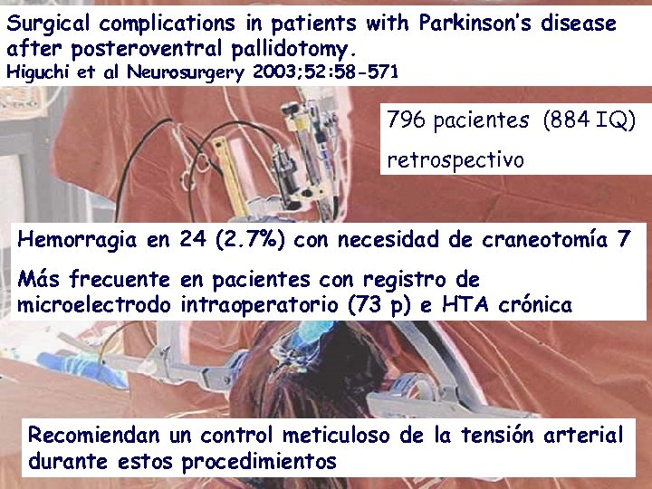 Surgical complications in patients with Parkinson's disease after posteroventral pallidotomy. Higuchi et al Neurosurgery