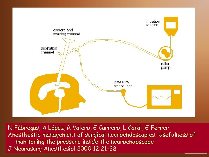 N Fàbregas, A López, R Valero, E Carrero, L Caral, E Ferrer Anesthestic management