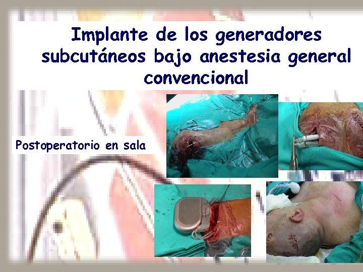 Implante de los generadores subcutáneos bajo anestesia general convencional Postoperatorio en sala