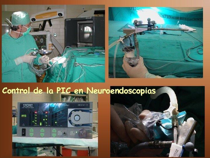Control de la PIC en Neuroendoscopias