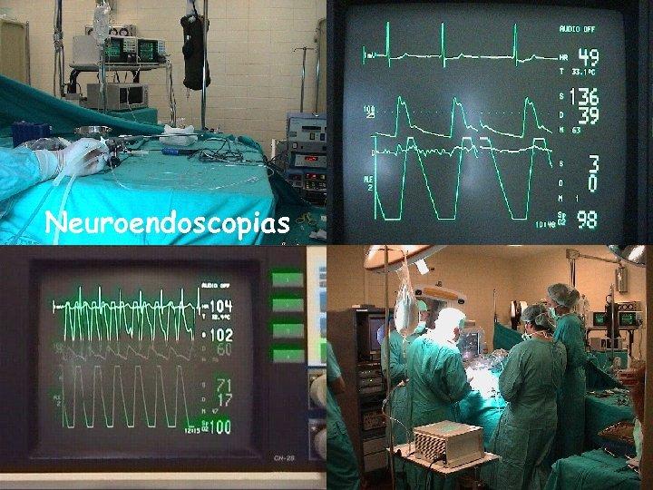 Neuroendoscopias