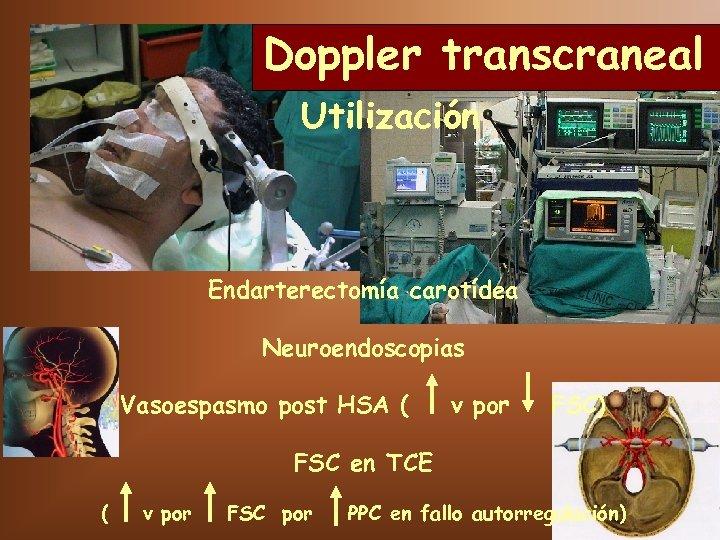 Doppler transcraneal Utilización Endarterectomía carotídea Neuroendoscopias Vasoespasmo post HSA ( v por FSC) FSC