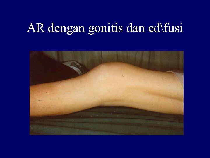AR dengan gonitis dan edfusi