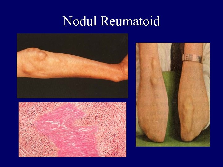 Nodul Reumatoid
