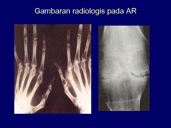 Gambaran radiologis pada AR