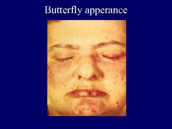 Butterfly apperance