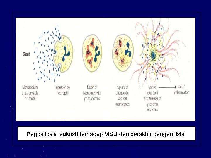 Pagositosis leukosit terhadap MSU dan berakhir dengan lisis