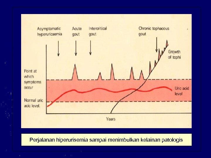 Perjalanan hiperurisemia sampai menimbulkan kelainan patologis