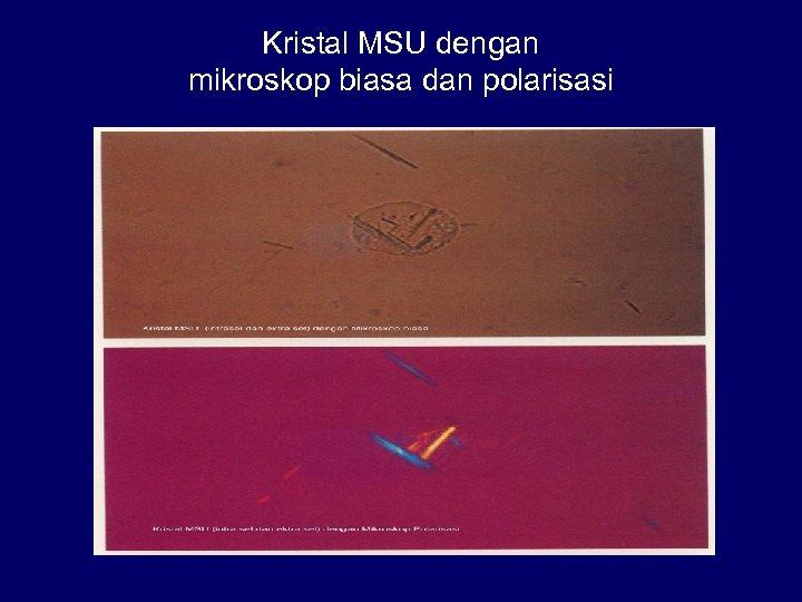 Kristal MSU dengan mikroskop biasa dan polarisasi
