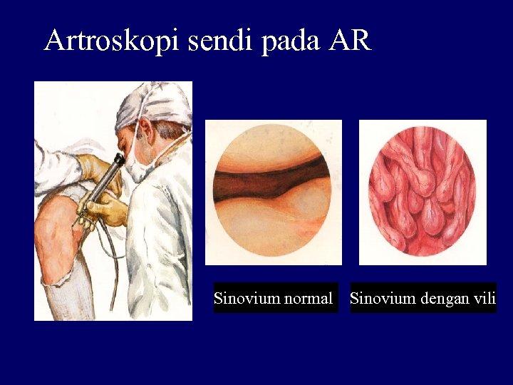 Artroskopi sendi pada AR Sinovium normall Sinovium dengan vili
