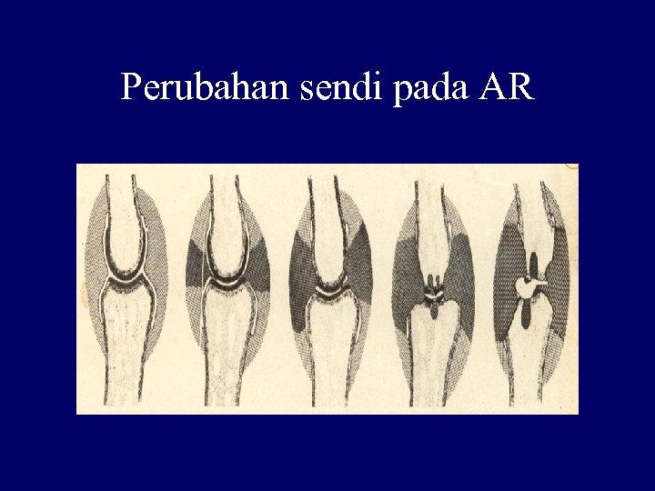 Perubahan sendi pada AR