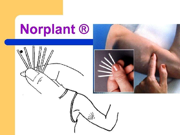 Norplant ® l